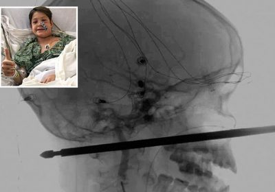 Boy, 10, had a miracle escape after 12inch BBQ skewer pierced his